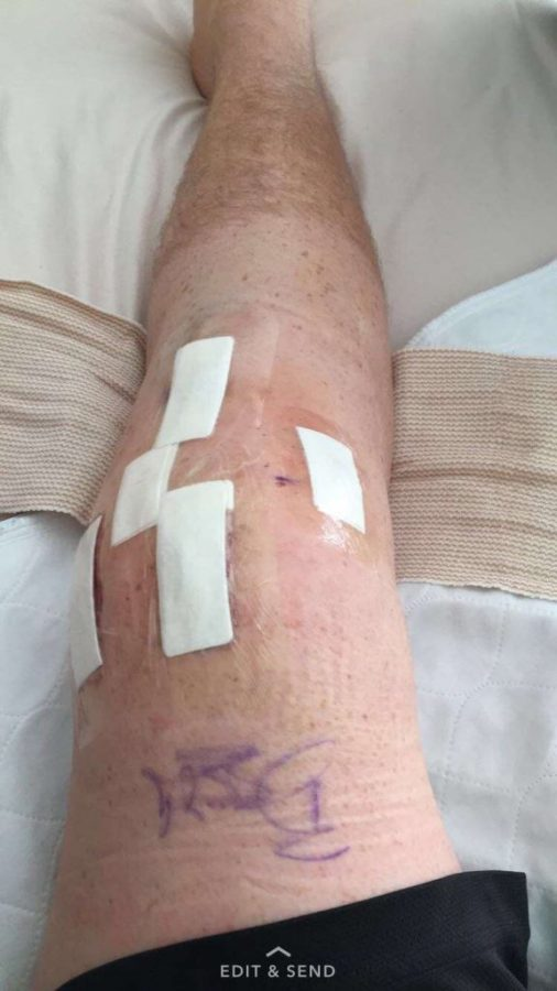 Aidan's knee incisions are covered with bandages. Before his surgery, Aidan Cassidy's leg was shaved.