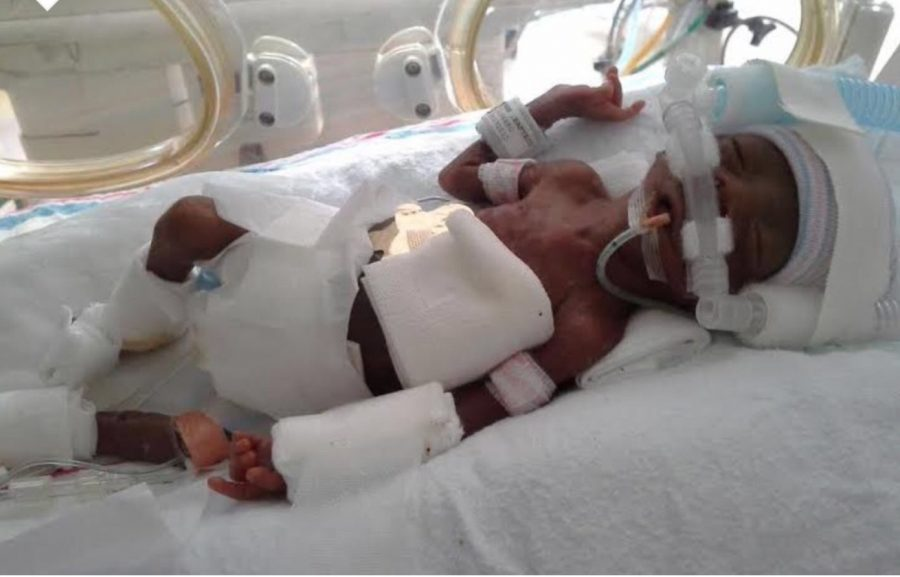 Jharid+in+the+NICU+after+being+born+16+weeks+early.+He+was+hooked+up+to+machines+that+were+assisting+him+in+staying+alive.%0A